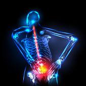 Human backbone in x-ray, back Pain, easy editable