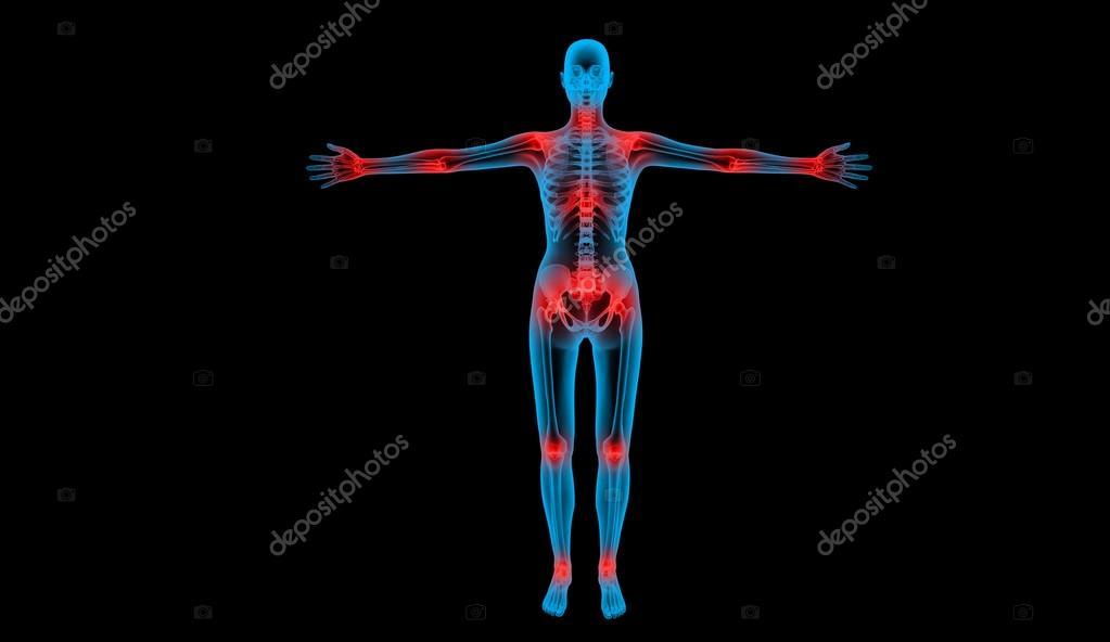 cuerpo humano de la radiografía de articulaciones dolorosas — Fotos ...