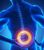 vista a raggi x problema di spina dorsale