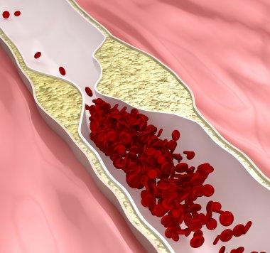 Atherosclerosis disease - plague blocking blood flow stock vector