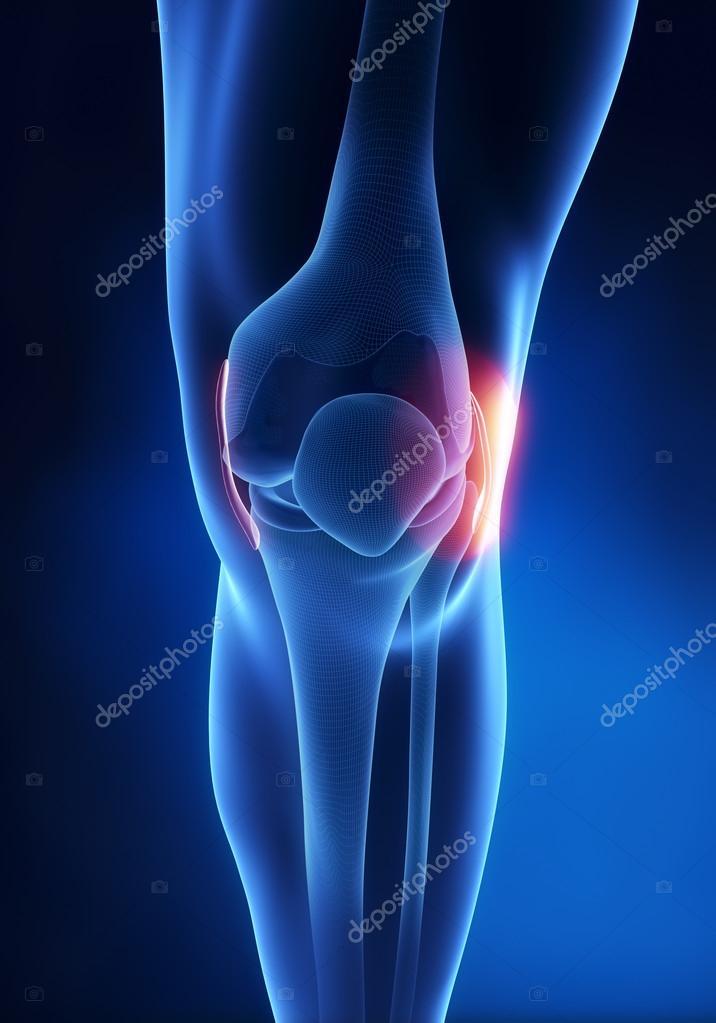 laterale collaterale ligament knieblessure — Stockfoto © CLIPAREA ...