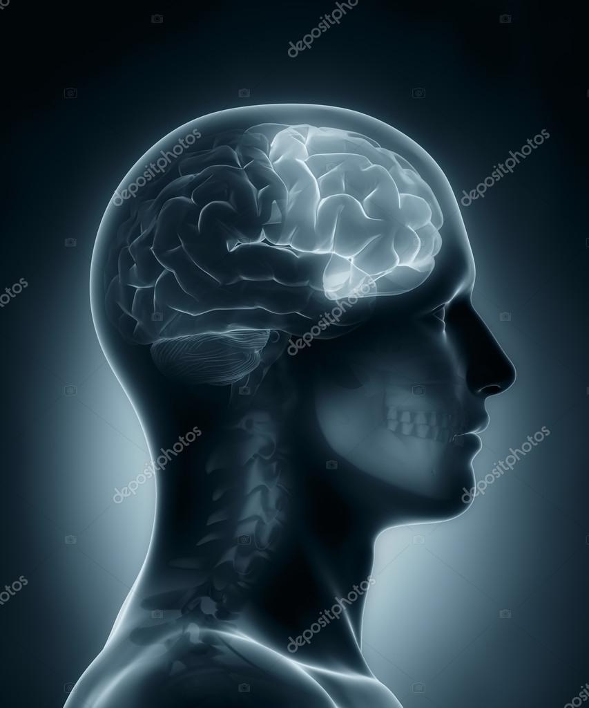 Frontallappen medizinische Röntgen-scan — Stockfoto © CLIPAREA #23408712
