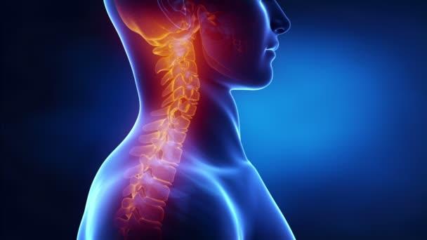 muž s kyphotic páteře v x-ray
