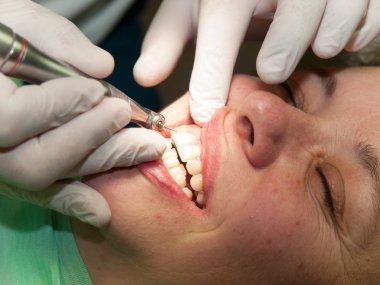Finishing of dental filling