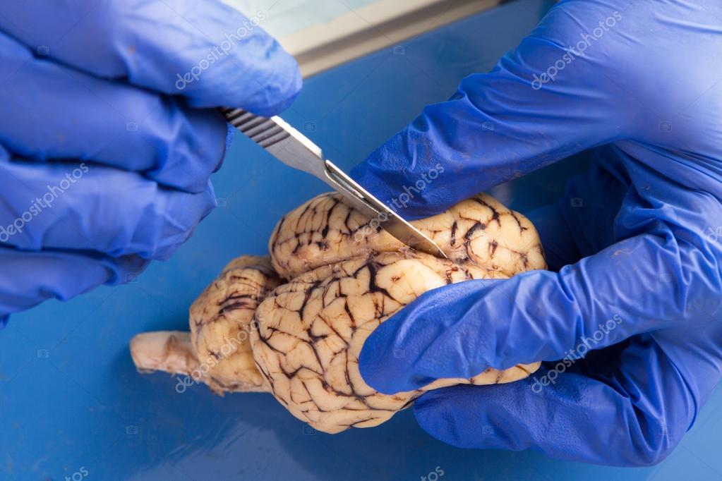 estudiante que esté usando un bisturí para diseccionar un cerebro de ...