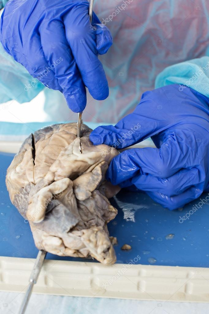 Medical student studying a sheep heart