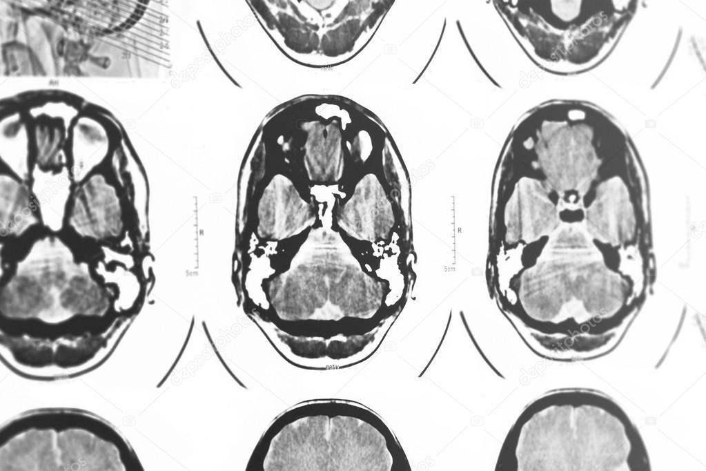 CT y mri del cráneo — Foto de stock © Adrx #50868683