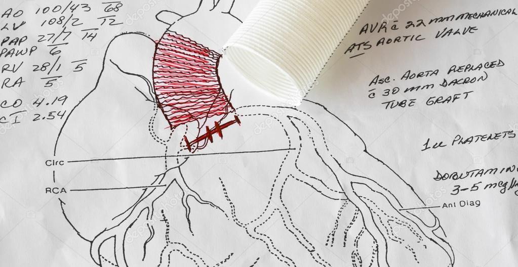Diagrama de cirugía de corazón de un cirujano cardiaco — Fotos de ...
