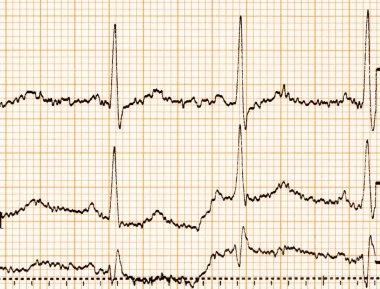 ECG diagram, ECG (electrocardiogram) paper stock vector