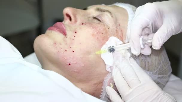 kozmetikai kezelés a botox injekció
