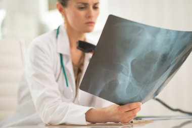Doctor with phone looking on fluorography