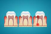 Fotografie Stufen-Fortschritt-Karies auf Zähne und Zahnfleisch Krankheit
