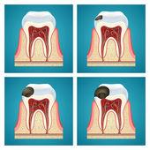 Fotografie Etappen Fortschritt Karies auf Zähne