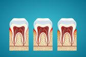 Fotografie drei menschlichen Zahnes in Cutaway mit Zahnfleischerkrankungen