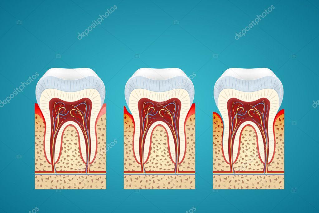 drei menschlichen Zahnes in Cutaway mit Zahnfleischerkrankungen ...