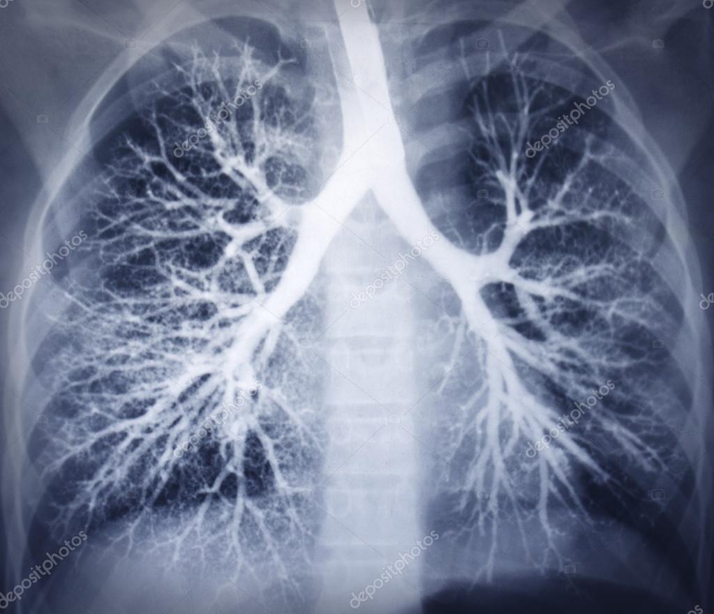 imagen de una broncoscopia. radiografía de tórax. pulmones sanos ...