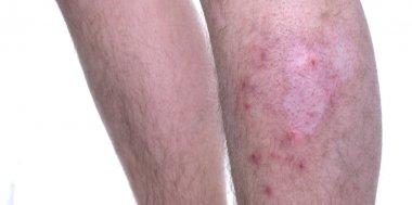 Skin Disease Vitiligo