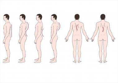 Deformstion of the spine