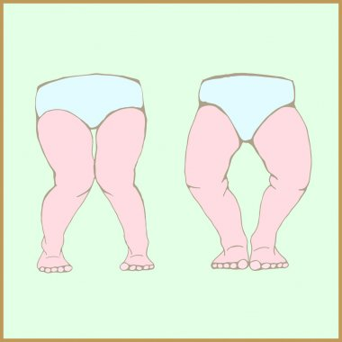 Genu varum, genu valgum - a physical legs deformity