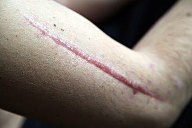 scar on human skin