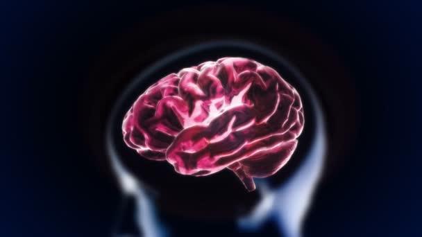 Crystal brain
