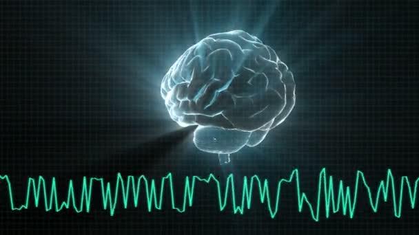 X-ray Brain diagram of technology