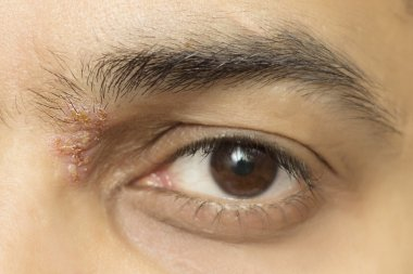 Herpetic eye disease - herpes zoster ophthalmicus