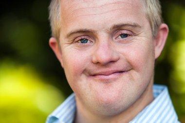 Face shot of handsome handicapped boy.