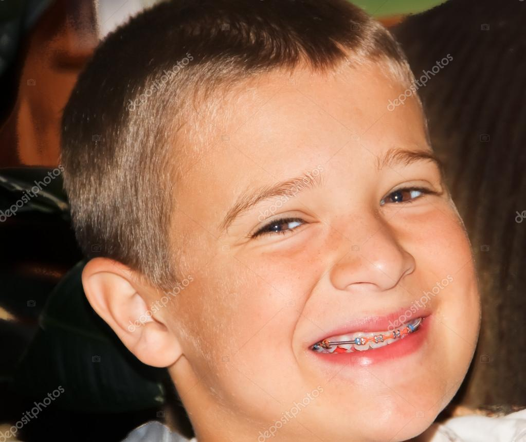 Braces Colors Ideas For Boys boy with new te...