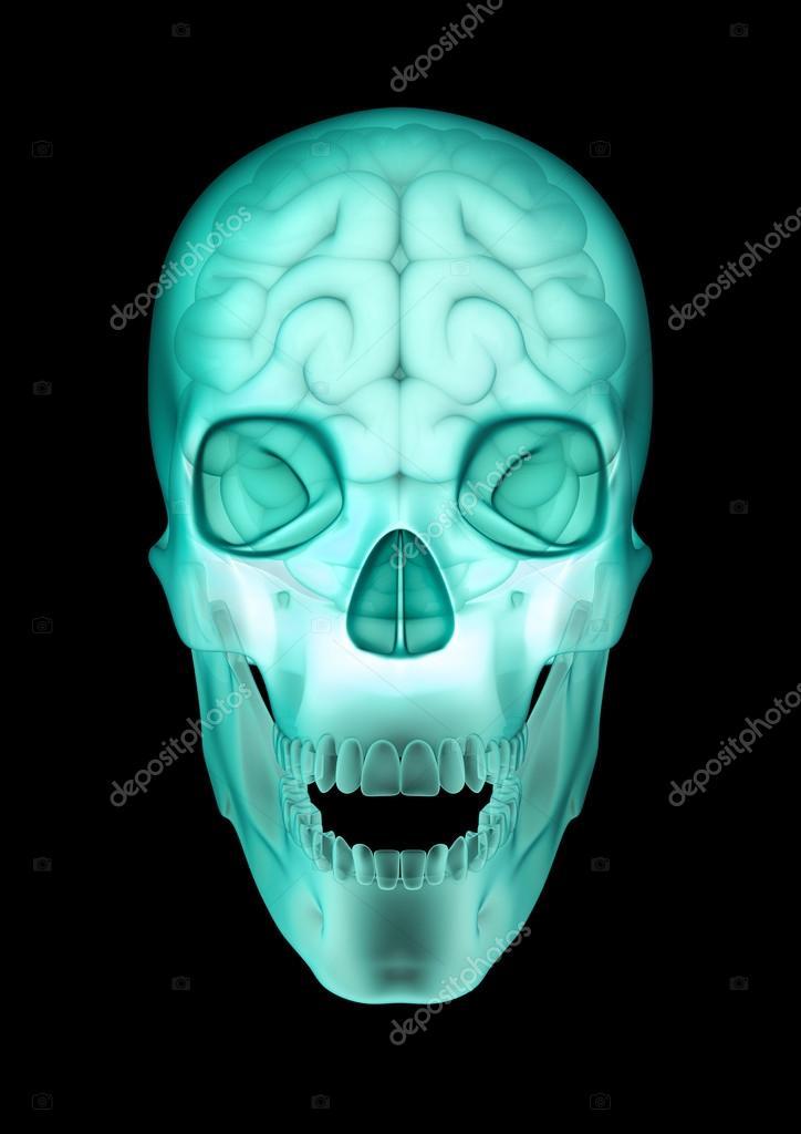 radiografía del cráneo cerebral — Foto de stock © grandeduc #26781821