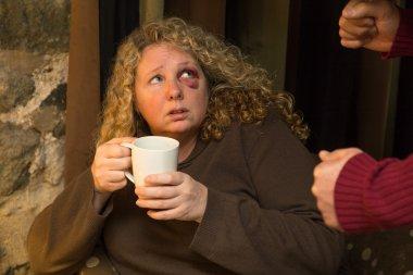 Fearful woman with black eye