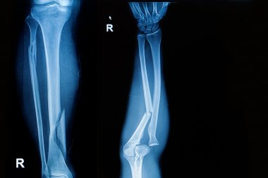 X-ray image  show fracture both bone of leg  and fracture shaft