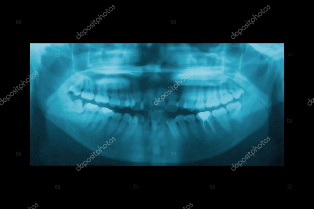 radiografía panorámica dental de ortodoncia y mandíbula Ortopedia ...
