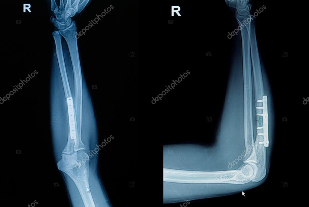 fractura de la muñeca de rayos x de la película: Mostrar la fractura ...