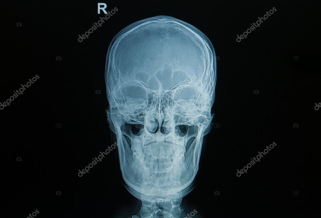 radiografía del cráneo — Fotos de Stock © plepraisaeng #49822759