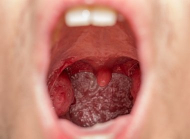 Open mouth view of tonsils