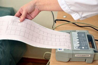 Graph paper with the results of the ECG