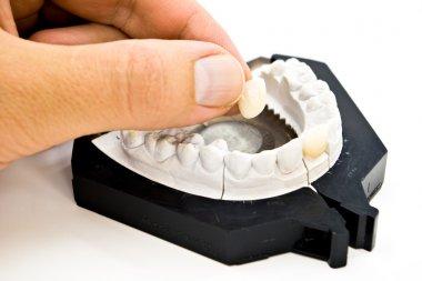 Plaster dental mold