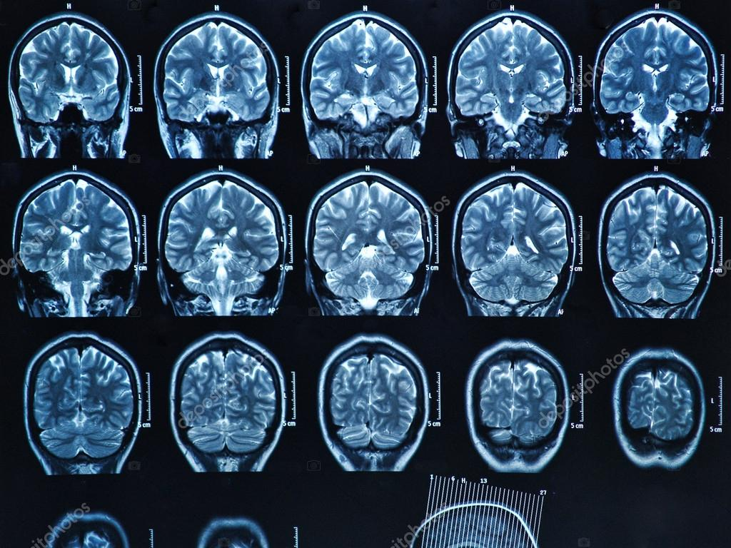 MRI Gehirn-scan — Stockfoto © Bunyos30 #18723407
