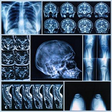 Radiography of Human Bones