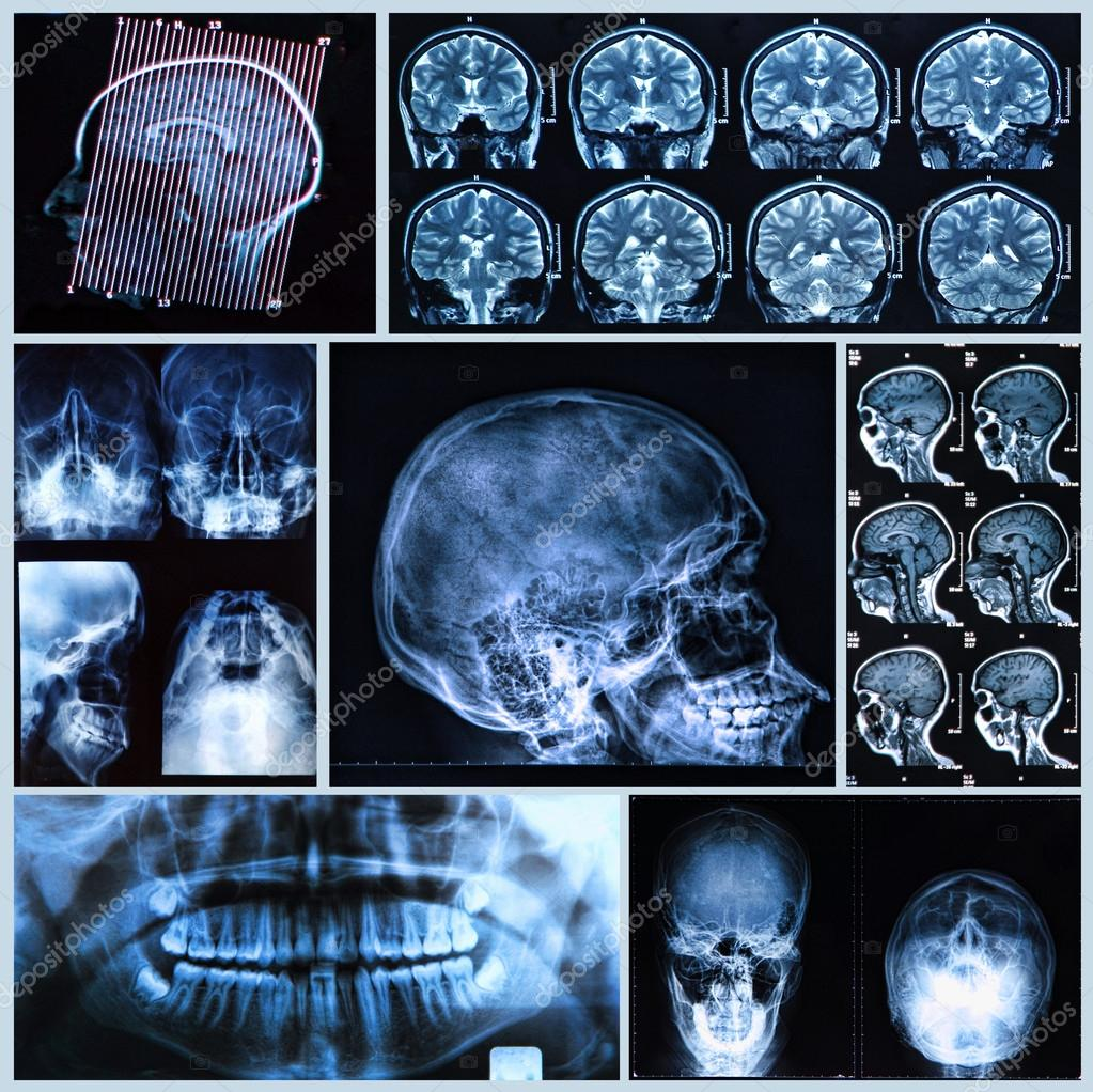 Head and neck anatomy — Stock Photo © Bunyos30 #25289079