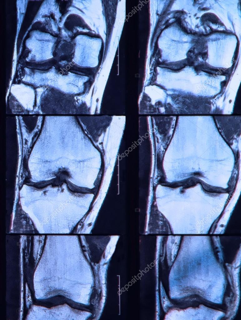 lágrima de ligamento cruzado anterior vista na ressonância magnética ...