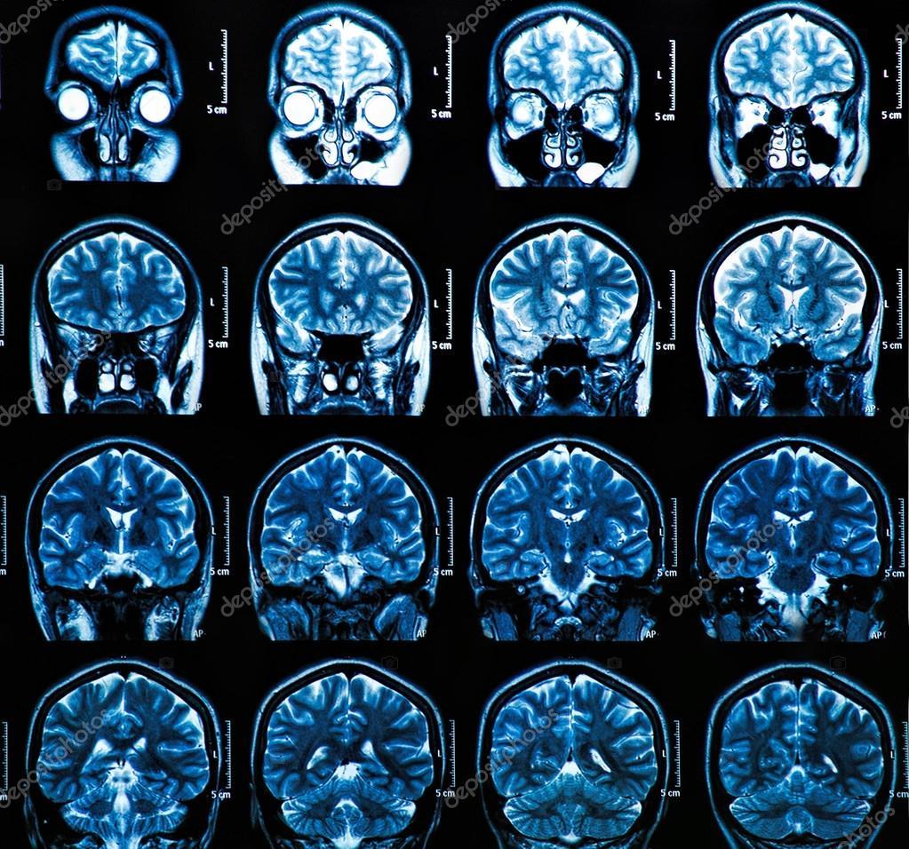 MRI Gehirn-scan — Stockfoto © Bunyos30 #42845371