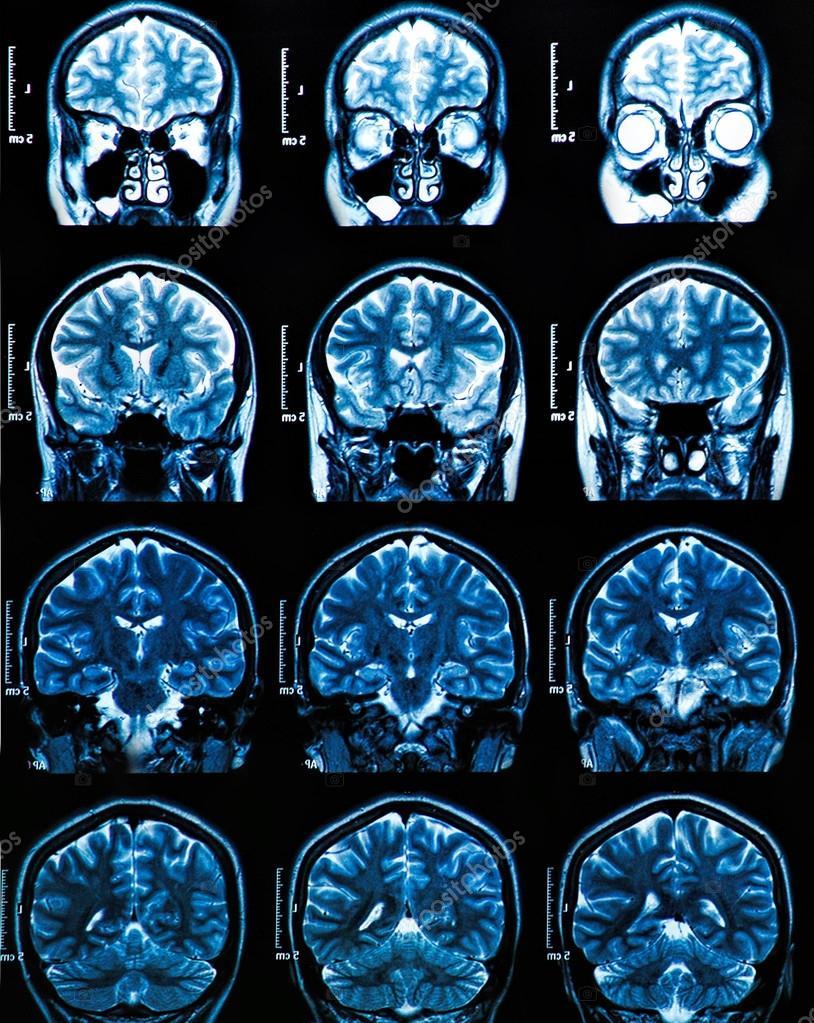 MRI Gehirn-scan — Stockfoto © Bunyos30 #42845373