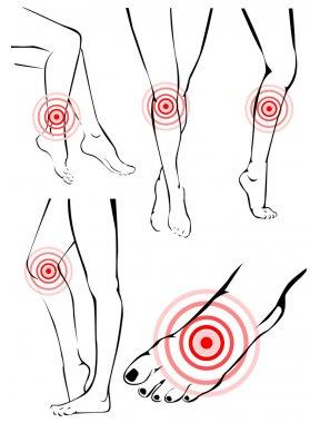 Legs pain