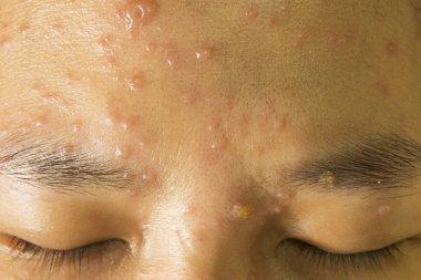 Chickenpox on face