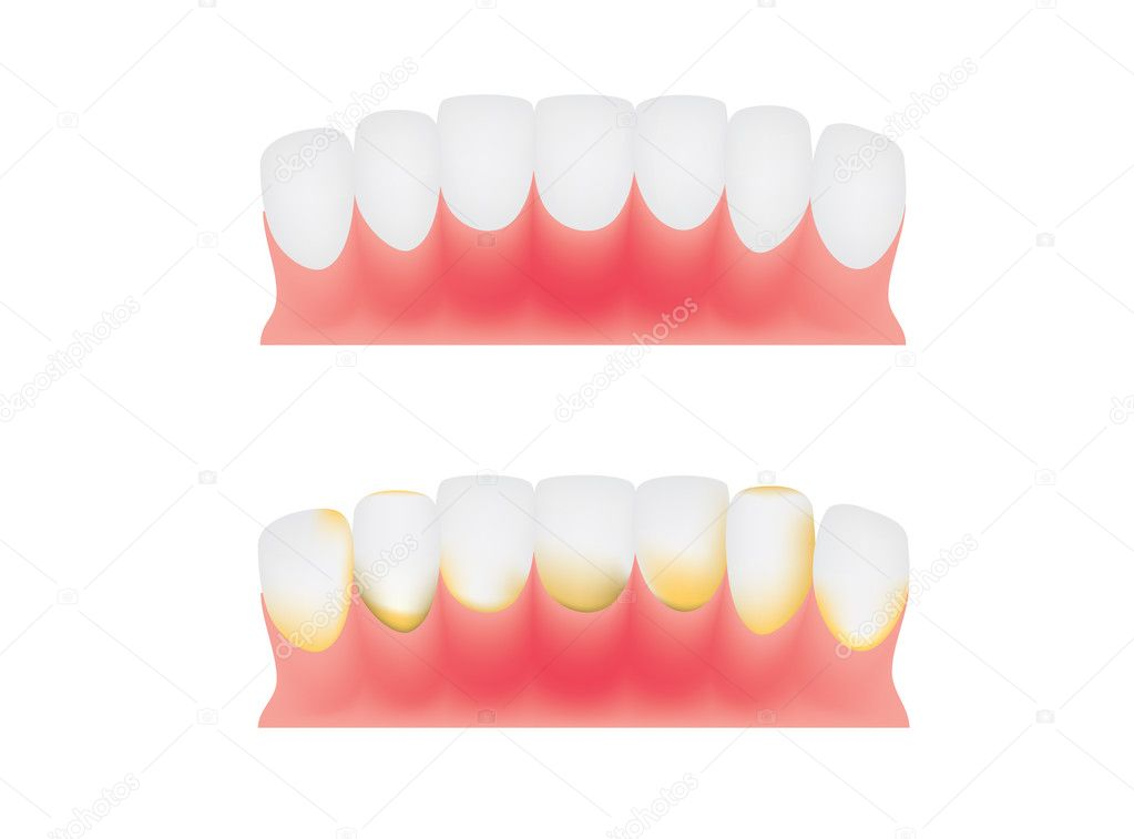 Teeth and gums, dental plaque