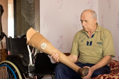 Senior man holding a prosthetic leg