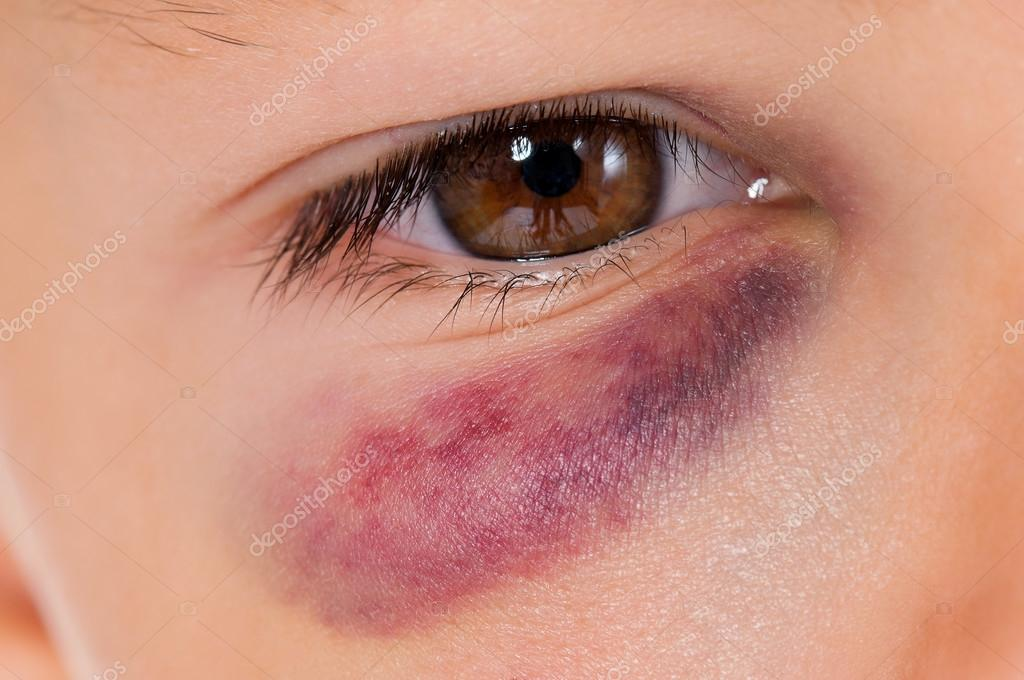 blåmärke i ögat