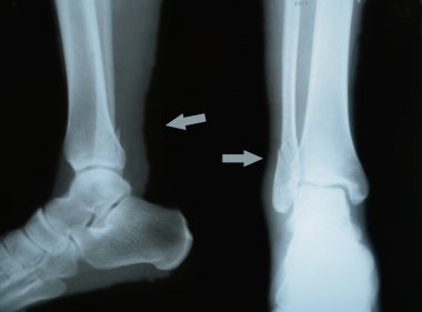 double fracture of tibia, two projections, X-ray